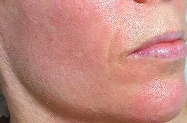 Sensitive Inflamed Skin